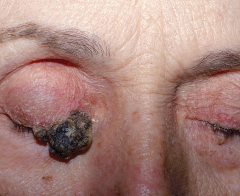 Lesson: Don't Be Stumped by These Lumps and Bumps