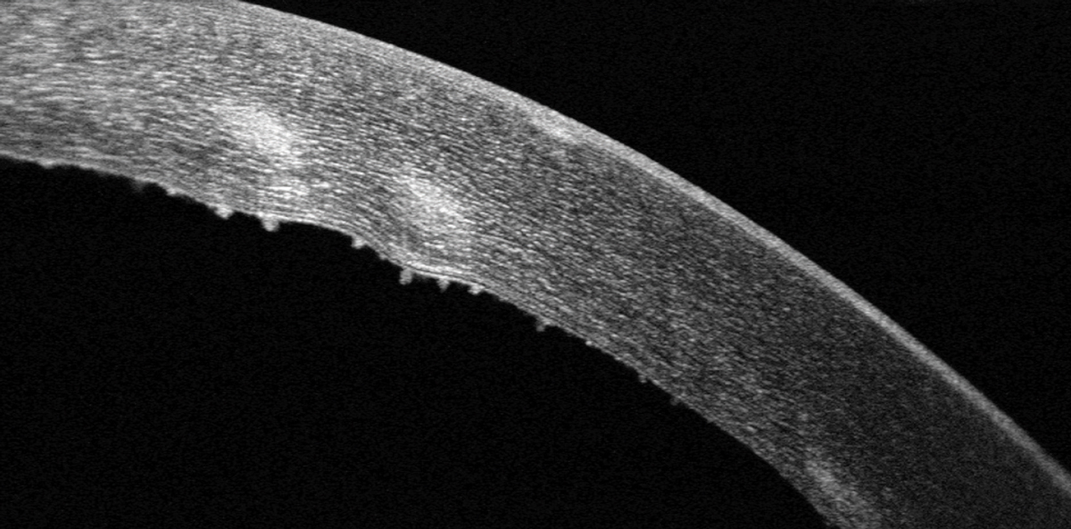 Keratic precipitates are visible on the corneal endothelium with SD-OCT imaging.