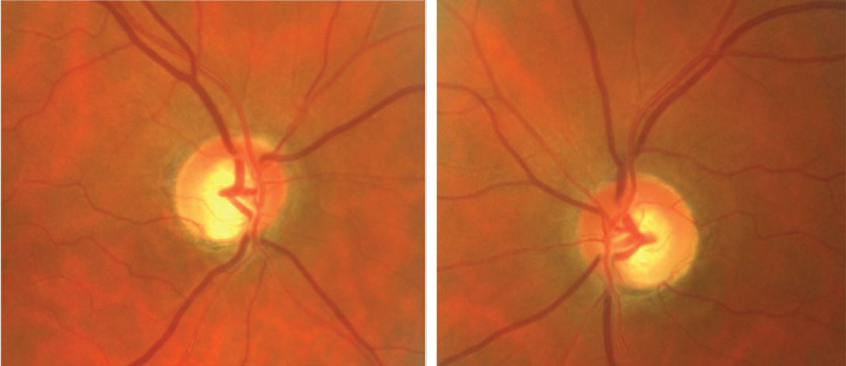 This glaucoma patient has significant inferior notching.