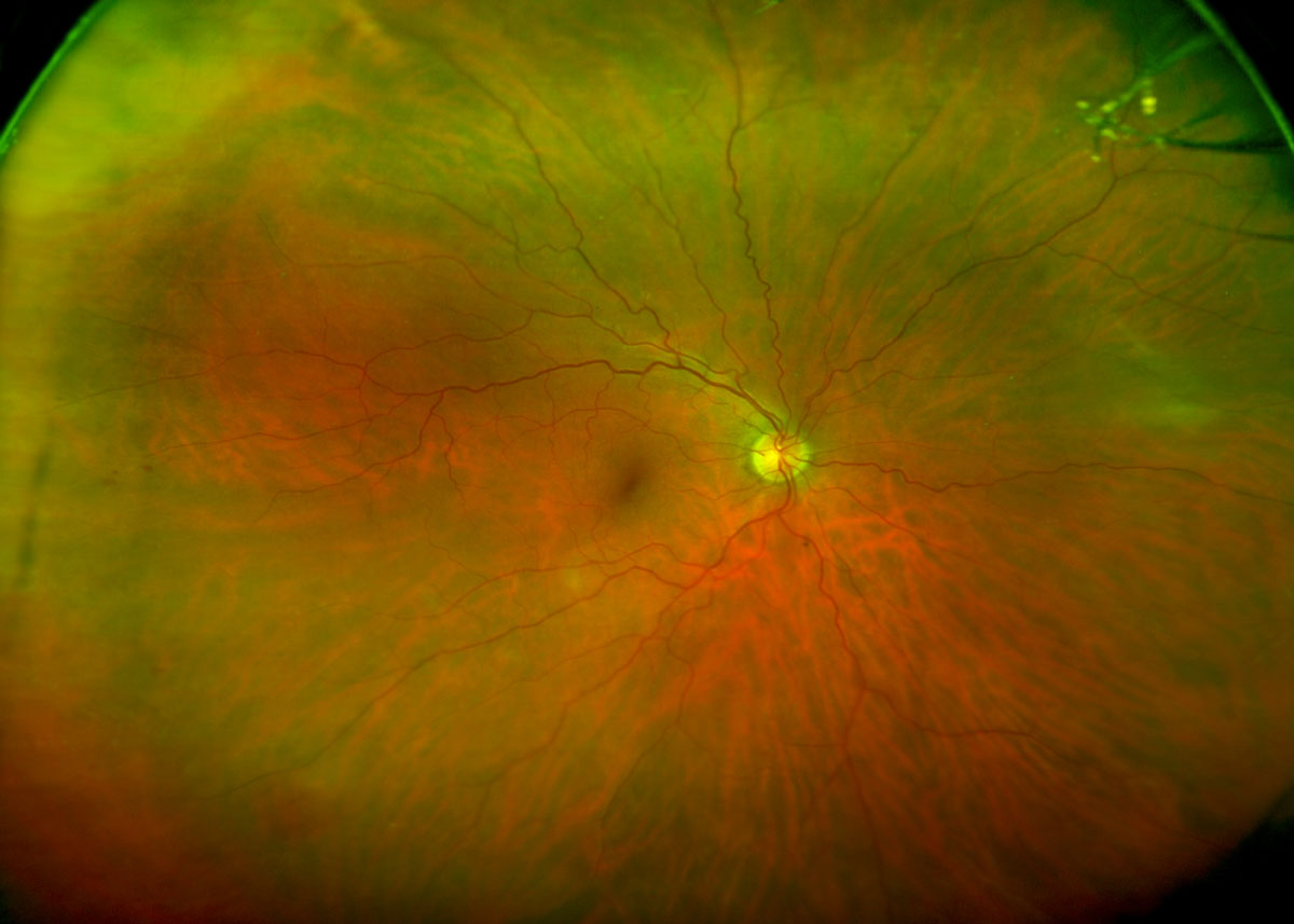 Lesson Improving The Identification And Care Of Patients With Features Hypertensive Retinopathy Include Wide Field Image Showing Peripheral Hemorrhages No Detectable Diabetic