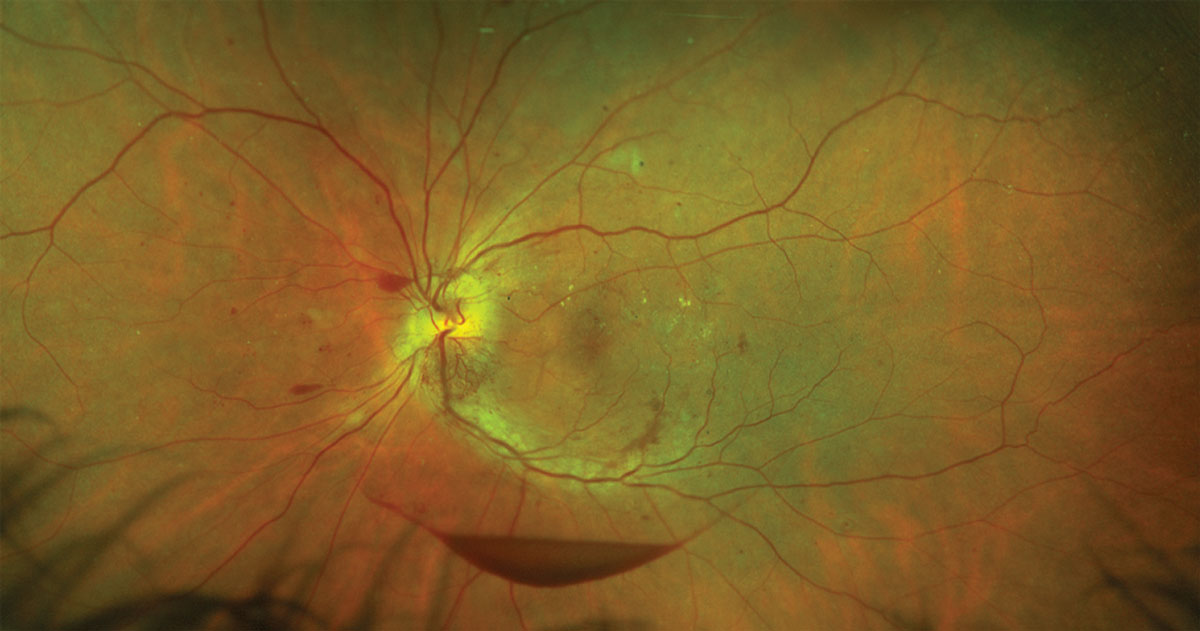 Fig. 2. Proliferative diabetic retinopathy with intraretinal hemorrhages, a preretinal hemorrhage and hard exudates.