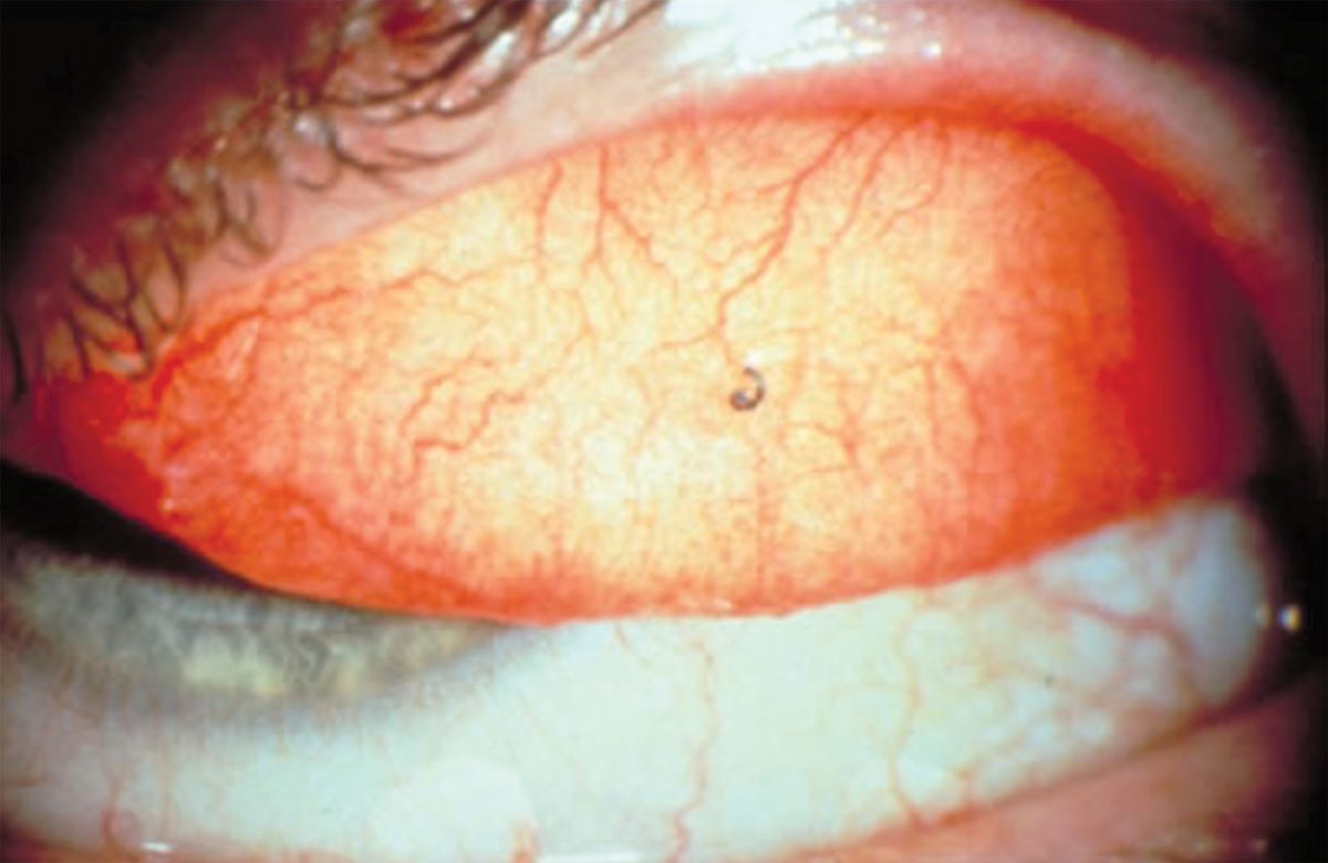 Fig. 2. Everting the lids can reveal a conjunctival foreign body.