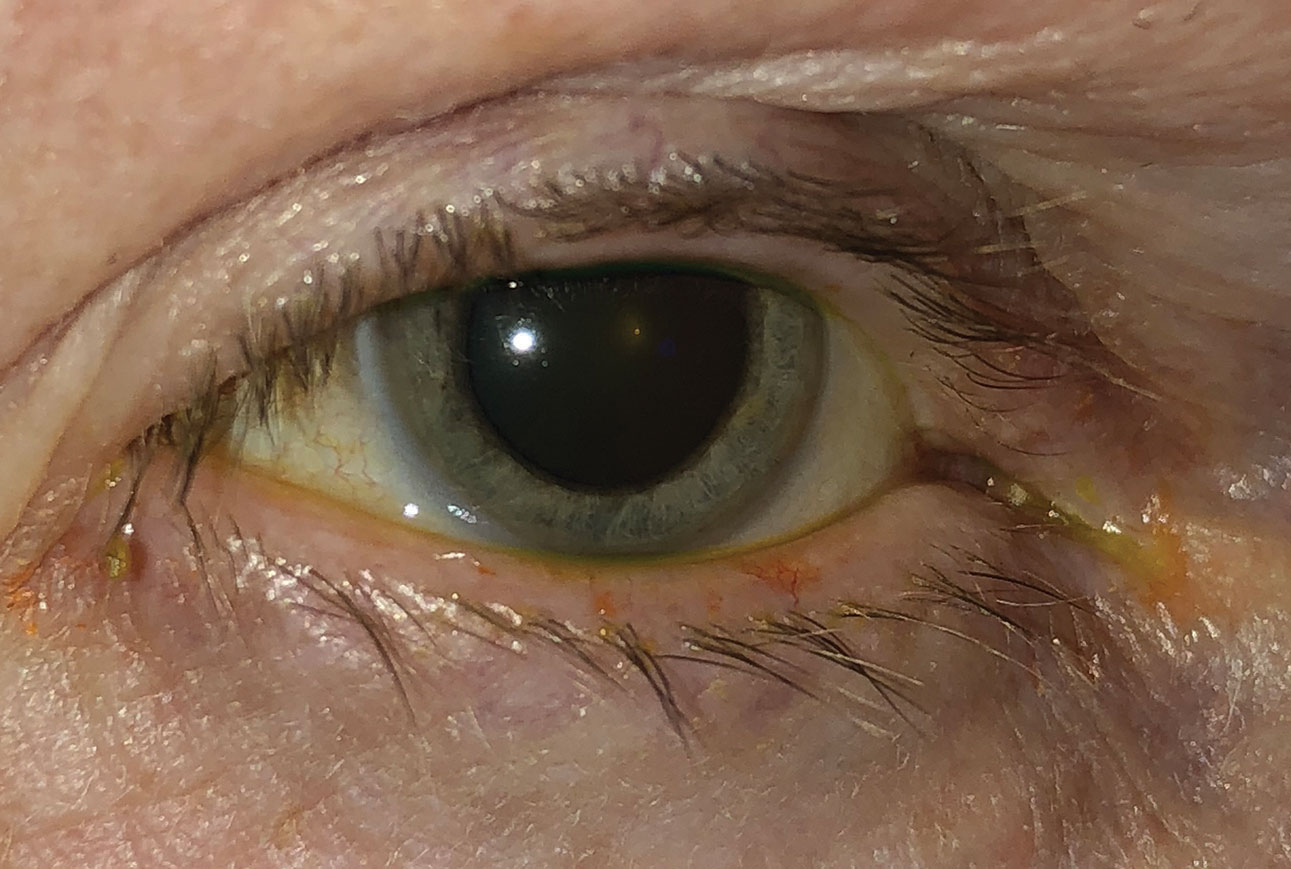 This patient has both ocular rosacea and dry eye.
