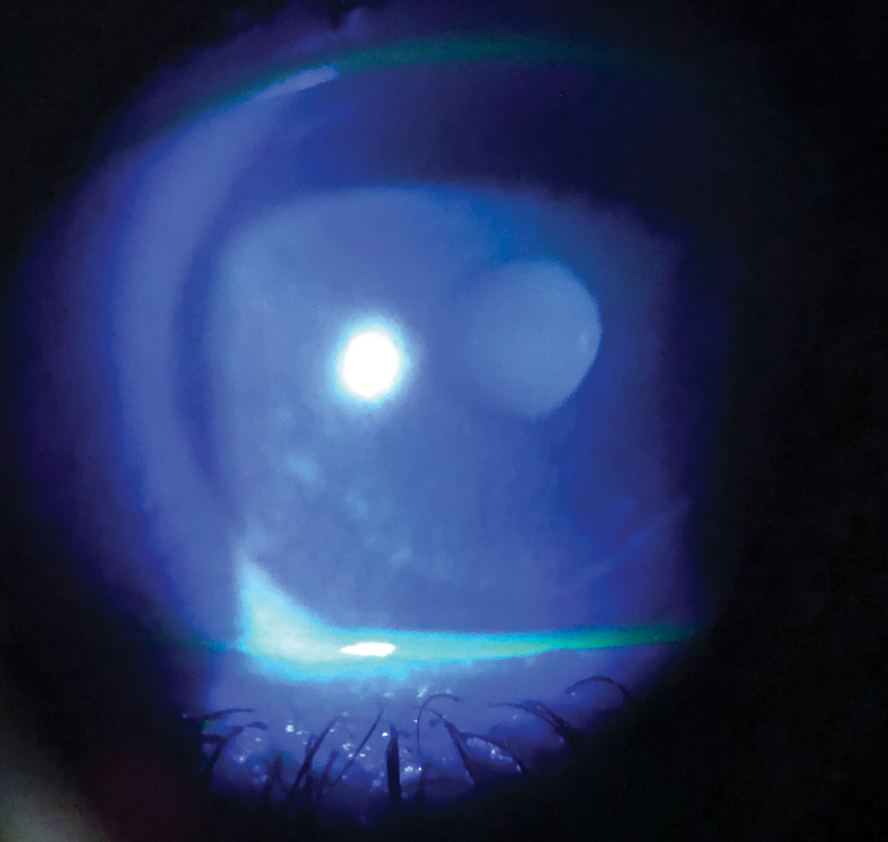 Dry eye in a patient with melanoma taking chemotherapeutic medications.