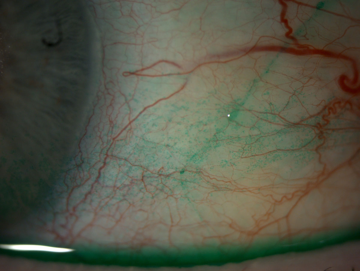 Fig. 3. Conjunctival staining with lissamine green.