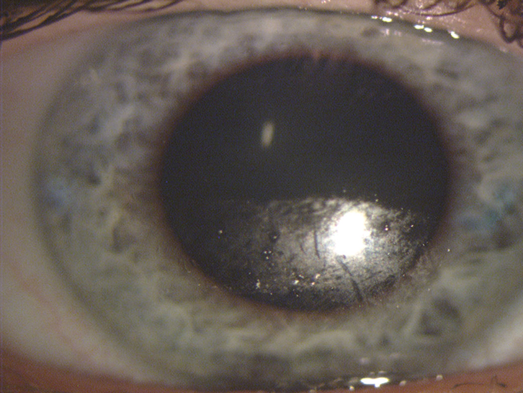 Fig. 1. This contact lens surface shows substantial drying across the inferior portion after a partial blink. Note the clear transition from dark (replenished) superior to speckled (dried) inferior portion of the lens, identifying where the downward movement of the blink ended.