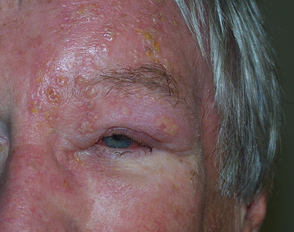 Fig. 4. This patient with herpes zoster ophthalmicus was successfully managed with an antiviral therapy.