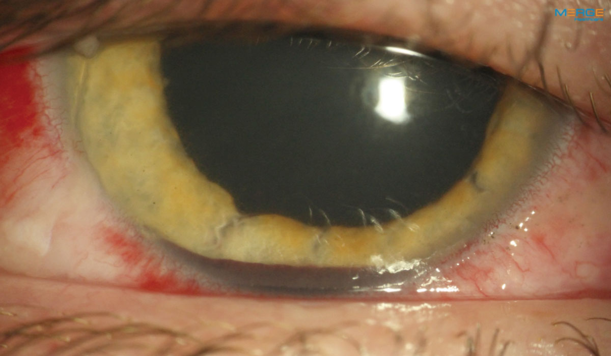 Fig. 7. This patient who had blunt trauma with hyphema, corneal and conjunctival abrasions, anterior uveitis and iris sphincter tears received an adjunctive oral narcotic for three days.
