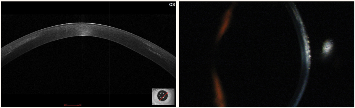 Fig. 5. Patient one month post-CXL with anterior corneal haze. Note the demarcation/hyperreflective line on OCT.