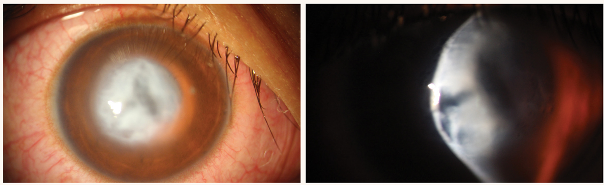 Fig. 6. Acute corneal hydrops in a patient with severe keratoconus.