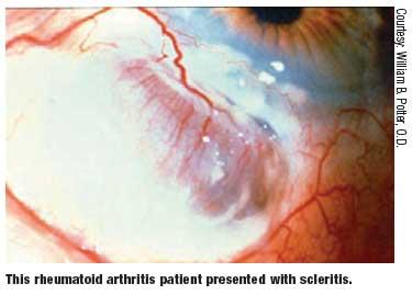 Lesson: When Autoimmune Disease Initiates DRY EYE